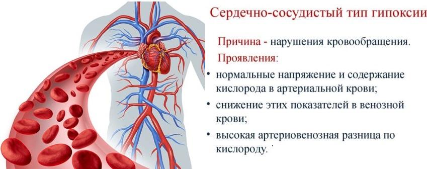 Сердечно-сосудистый тип гипоксии