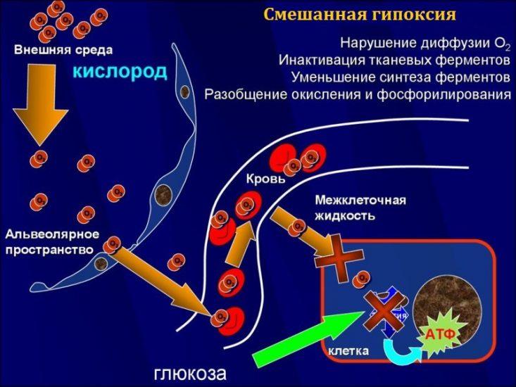 Смешанная гипоксия