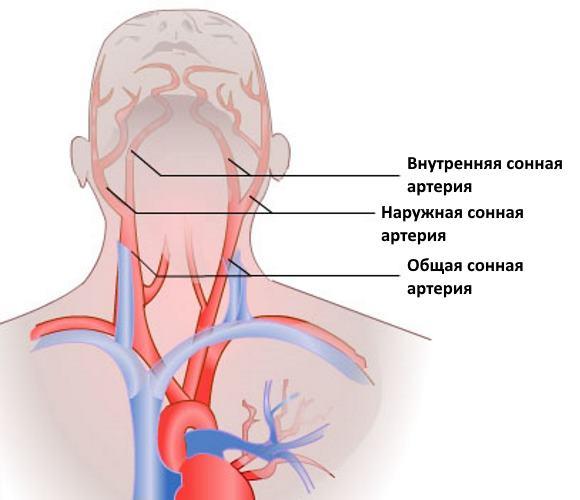 Что такое сонная артерия