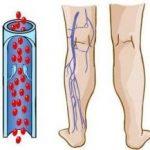 Венозный застой в ногах
