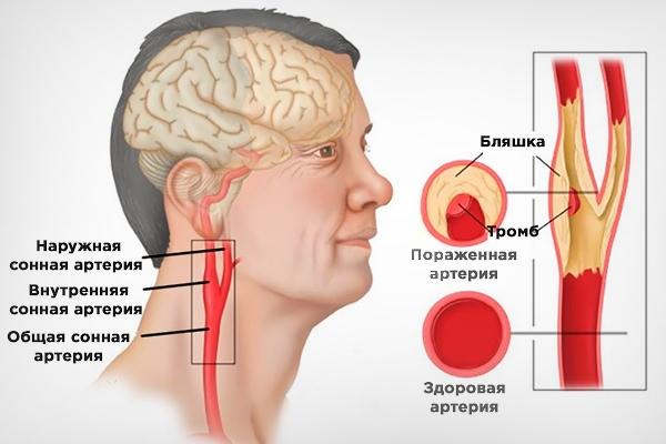 Что такое закупорка сонной артерии