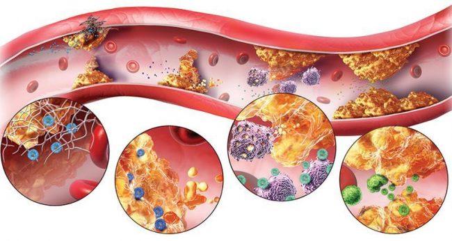 Образование холестериновых бляшек рисунок