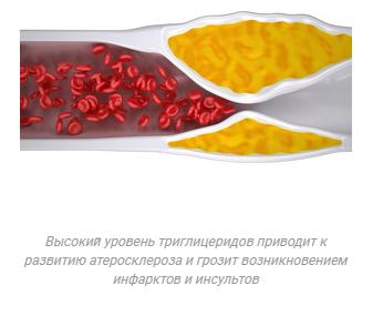 Атеросклероз при высоком уровне триглицеридов