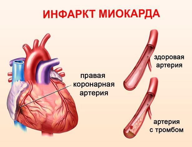 Риск инфаркта миокарда при повышенном Д-димере