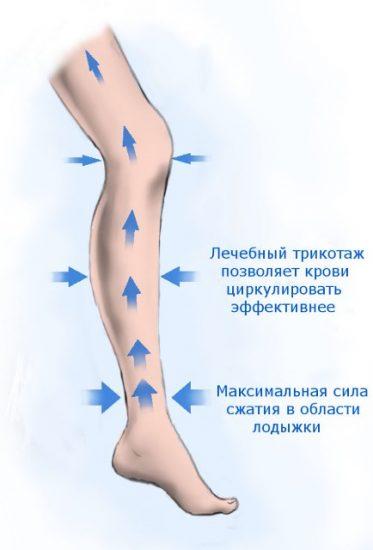 Действие компрессионного трикотажа при варикозе