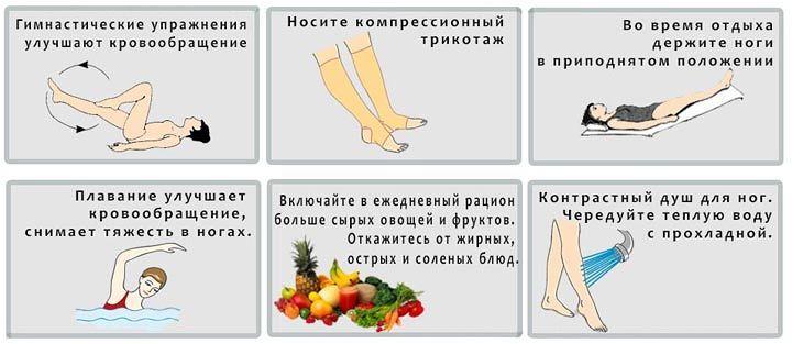 Прогноз для больного при варикозе