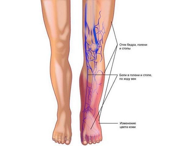 Отек ног, синюшность кожи - показание к анализу на Д димер