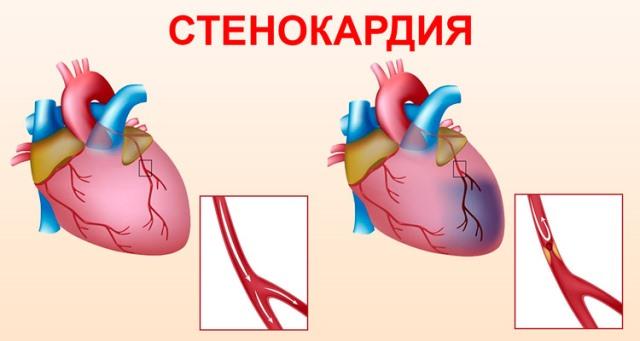 Риск развития стенокардии