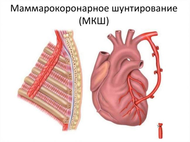 Маммарокоронарное шунтирование (МКШ)