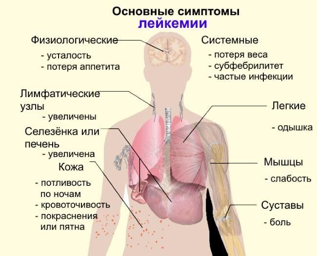 Основные симптомы рака крови