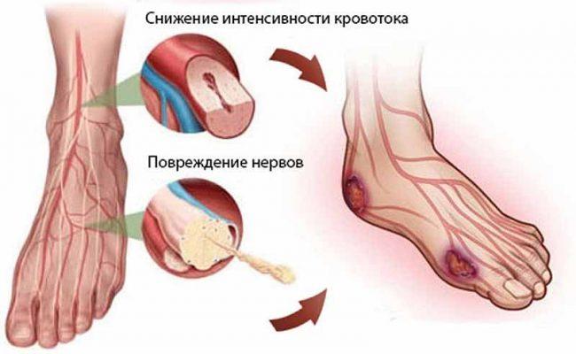 симптомы диабетическо стопы и нейропатия