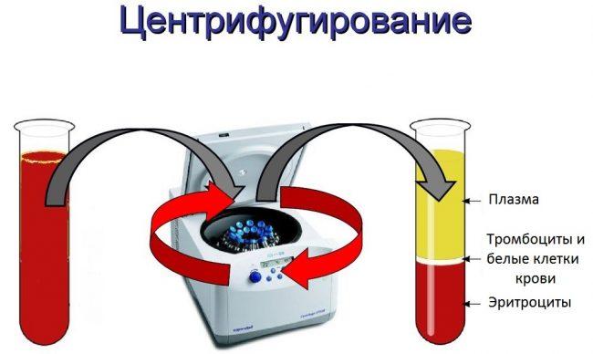 центрифугирование крови-1