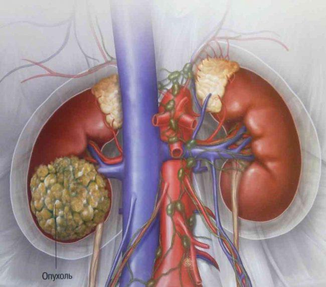 сдавлении вены опухолью почек рисунок