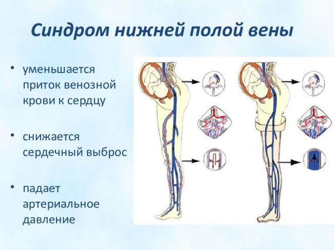 синдром нижней полой вены-1