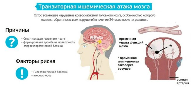 тиа головного мозга
