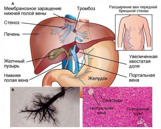 тотальное расширение нижней полой вены