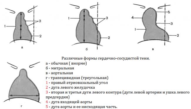 Виды конфигурации сердца