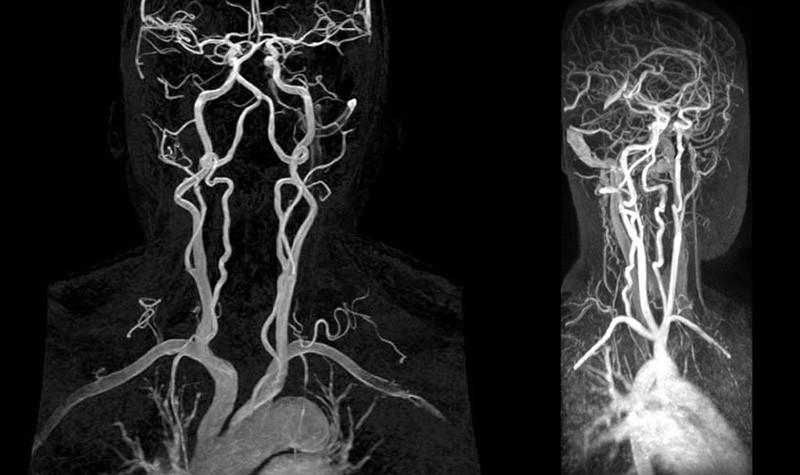МРТ артерий шеи