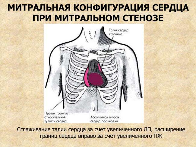 Митральная конфигурация сердца