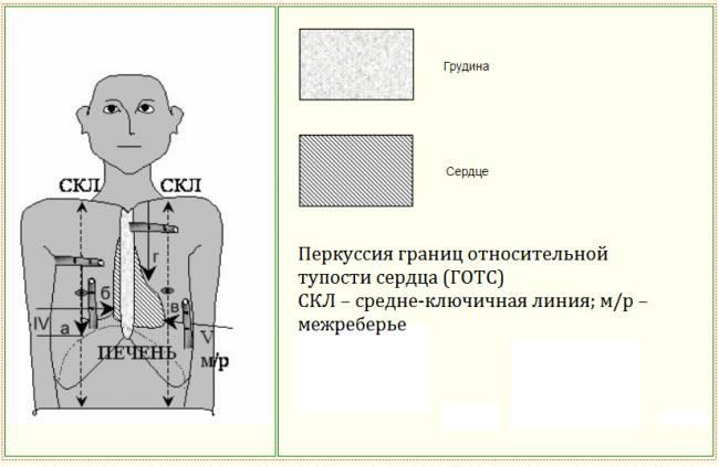 Определение конфигурации сердца перкуссией