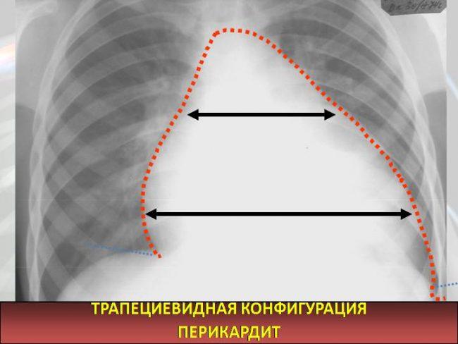 Трапециевидная конфигурация сердца