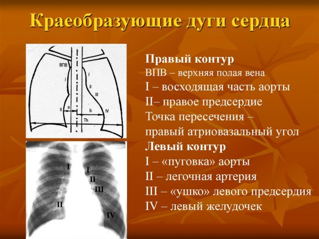 краеобразующие дуги сердца
