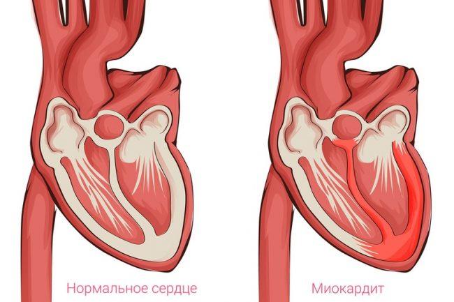 миокардит-1
