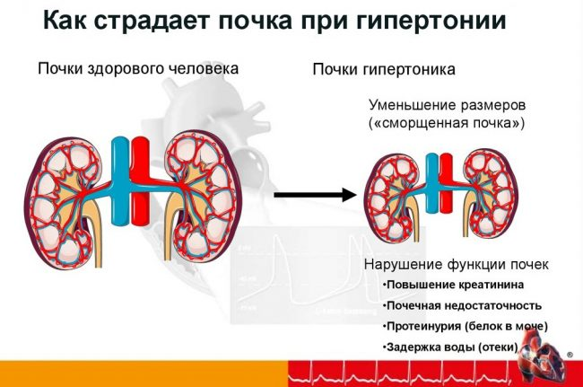 Гипертоническая болезнь сердца с поражением почек