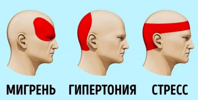 гипертония и головная боль