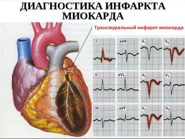диагностика- трансмурального инфаркта