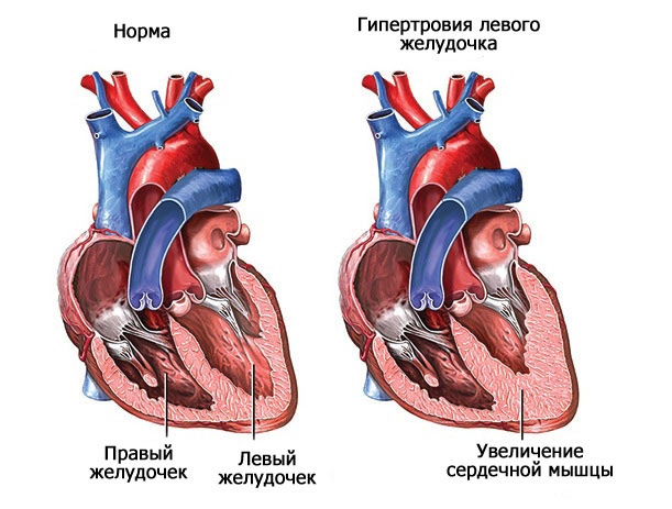 увеличение сердечной мышцы
