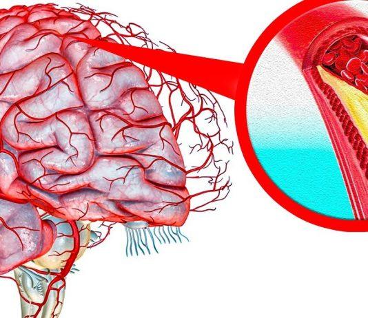 как почистить сосуды головного мозга